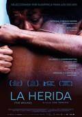 La herida (the wound)